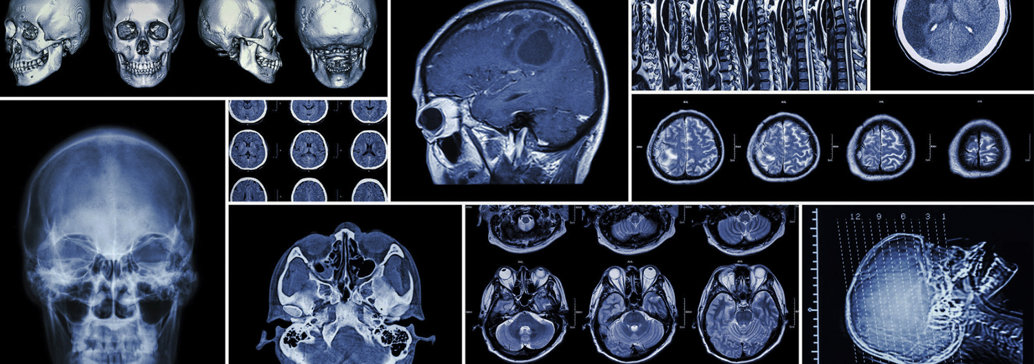 senta-clinic-physician-surgeon-doctor-health-surgery-medical-condition-best-brain-skull-xray-scan-disease-disorders-san-diego
